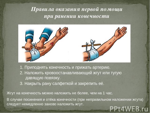 Правила оказания первой помощи при ранении конечности 1. Приподнять конечность и прижать артерию. 2. Наложить кровоостанавливающий жгут или тугую давящую повязку. 3. Накрыть рану салфеткой и закрепить её. Жгут на конечность можно наложить не более, …