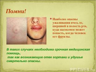 Наиболее опасны ужаливания пчел, ос, шершней в полость рта, куда насекомое может