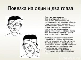 Повязка на один и два глаза Повязка на один глаз (монокулярная). Повязку применя