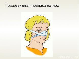 Пращевидная повязка на нос