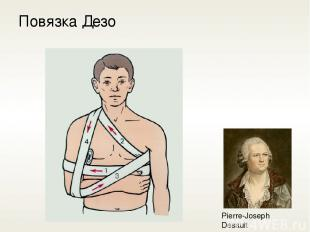 Повязка Дезо Pierre-Joseph Desault