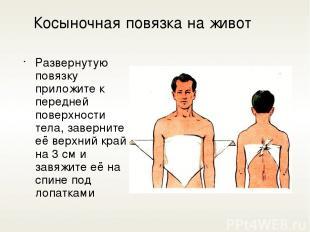 Косыночная повязка на живот Развернутую повязку приложите к передней поверхности