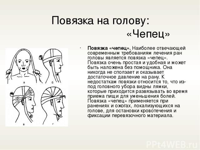 Повязка на голову: «Чепец» Повязка «чепец».Наиболее отвечающей современным требованиям лечения ран головы является повязка «чепец». Повязка очень простая и удобная и может быть наложена без помощника. Она никогда не сползает и оказывает достаточное…