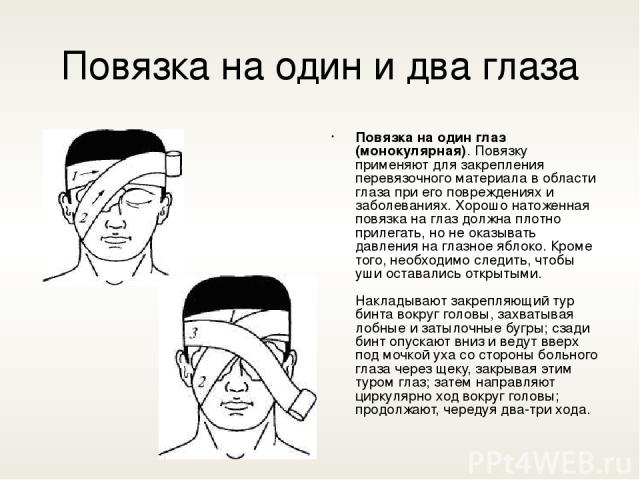 Повязка на один и два глаза Повязка на один глаз (монокулярная). Повязку применяют для закрепления перевязочного материала в области глаза при его повреждениях и заболеваниях. Хорошо натоженная повязка на глаз должна плотно прилегать, но не оказыват…