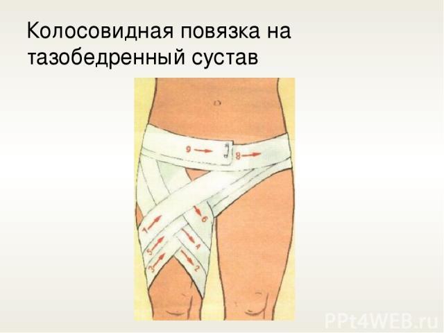 Колосовидная повязка на тазобедренный сустав
