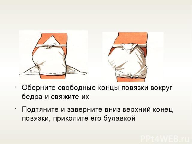 Оберните свободные концы повязки вокруг бедра и свяжите их Подтяните и заверните вниз верхний конец повязки, приколите его булавкой