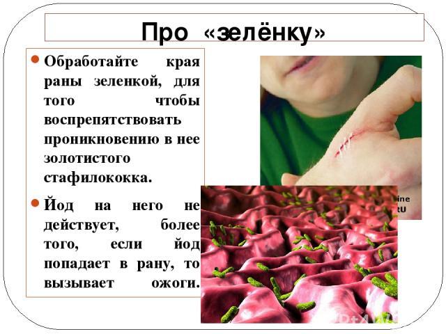 Про «зелёнку» Обработайте края раны зеленкой, для того чтобы воспрепятствовать проникновению в нее золотистого стафилококка. Йод на него не действует, более того, если йод попадает в рану, то вызывает ожоги.