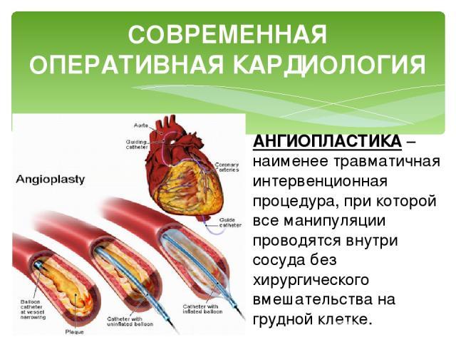 СОВРЕМЕННАЯ ОПЕРАТИВНАЯ КАРДИОЛОГИЯ АНГИОПЛАСТИКА – наименее травматичная интервенционная процедура, при которой все манипуляции проводятся внутри сосуда без хирургического вмешательства на грудной клетке.