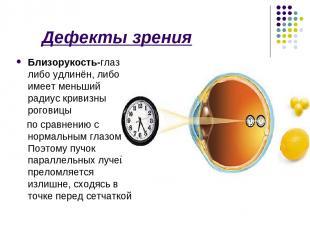 Дефекты зрения Близорукость-глаз либо удлинён, либо имеет меньший радиус кривизн