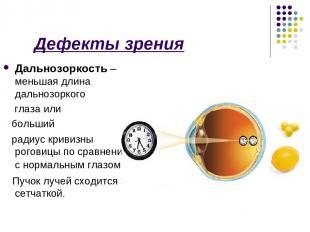 Дефекты зрения Дальнозоркость – меньшая длина дальнозоркого глаза или больший ра