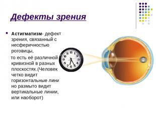 Дефекты зрения Астигматизм- дефект зрения, связанный с несферичностью роговицы,