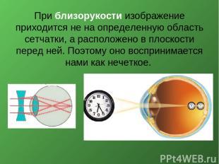 При близорукости изображение приходится не на определенную область сетчатки, а р