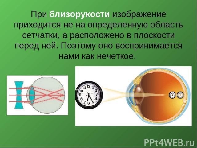 При близорукости изображение приходится не на определенную область сетчатки, а расположено в плоскости перед ней. Поэтому оно воспринимается нами как нечеткое.