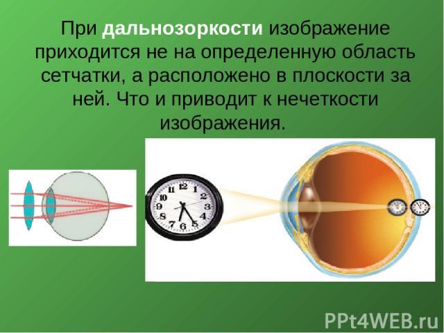 При дальнозоркости изображение приходится не на определенную область сетчатки, а расположено в плоскости за ней. Что и приводит к нечеткости изображения.