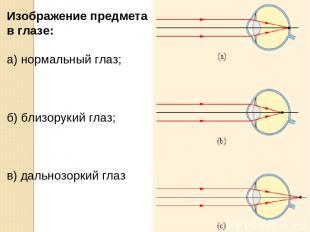 Изображение предмета в глазе: а) нормальный глаз; б) близорукий глаз; в) дальноз