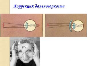 Коррекция дальнозоркости
