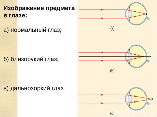 Изображение предмета в глазе: а) нормальный глаз; б) близорукий глаз; в) дальнозоркий глаз