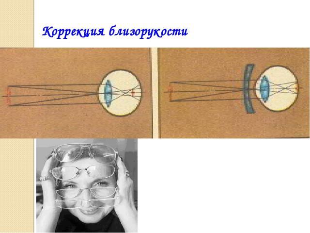 Коррекция близорукости