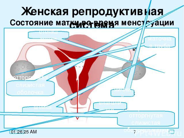 Женская репродуктивная система Состояние матки во время менструации стенка матки отторгаемая слизистая оболочка матки маточная труба яичник влагалище шейка матки кровь + отторгнутая слизистая оболочка матки