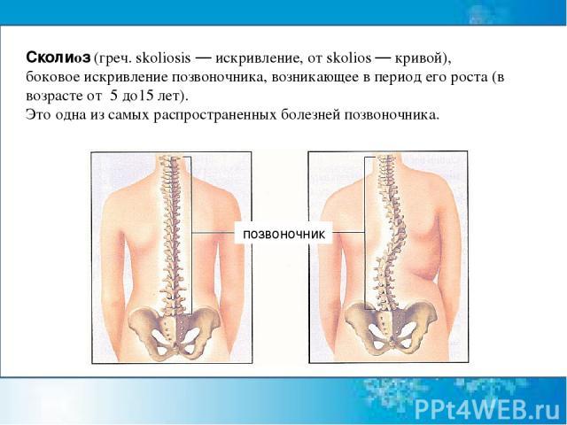 Сколиоз(греч. skoliosis — искривление, от skolios — кривой), боковоеискривление позвоночника, возникающее в период его роста (в возрасте от 5 до15 лет). Это одна изсамых распространенных болезней позвоночника. позвоночник