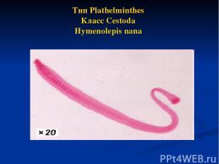 Тип Plathelminthes Класс Cestoda Hymenolepis nana