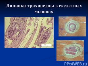 Личинки трихинеллы в скелетных мышцах