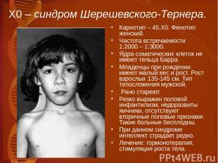 Х0 – синдром Шерешевского-Тернера. Кариотип – 45,Х0. Фенотип женский. Частота вс