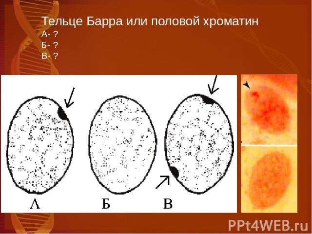 Тельце Барра или половой хроматин А- ? Б- ? В- ?