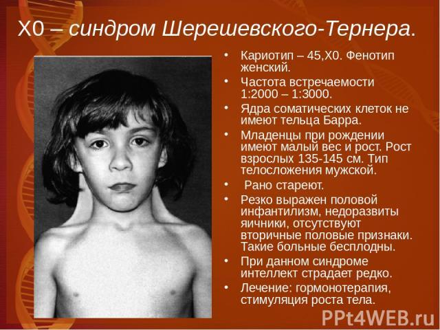 Х0 – синдром Шерешевского-Тернера. Кариотип – 45,Х0. Фенотип женский. Частота встречаемости 1:2000 – 1:3000. Ядра соматических клеток не имеют тельца Барра. Младенцы при рождении имеют малый вес и рост. Рост взрослых 135-145 см. Тип телосложения муж…