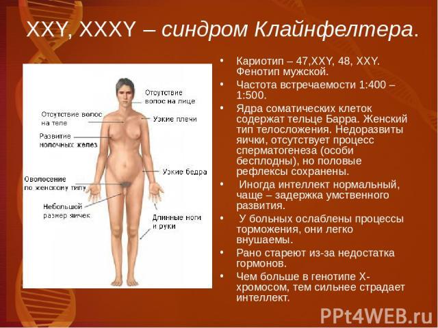 ХХY, XXXY – синдром Клайнфелтера. Кариотип – 47,XXY, 48, XXY. Фенотип мужской. Частота встречаемости 1:400 – 1:500. Ядра соматических клеток содержат тельце Барра. Женский тип телосложения. Недоразвиты яички, отсутствует процесс сперматогенеза (особ…