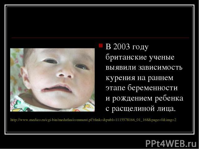 В2003году британские ученые выявили зависимость курения нараннем этапе беременности ирождением ребенка срасщелиной лица. http://www.medico.ru/cgi-bin/medatlas/comment.pl?rlink=&publ=1115578166_01_168&page=0&img=2
