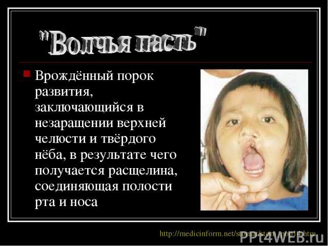Врождённый порок развития, заключающийся в незаращении верхней челюсти и твёрдого нёба, в результате чего получается расщелина, соединяющая полости рта и носа http://medicinform.net/stomat/stom_pop14.htm