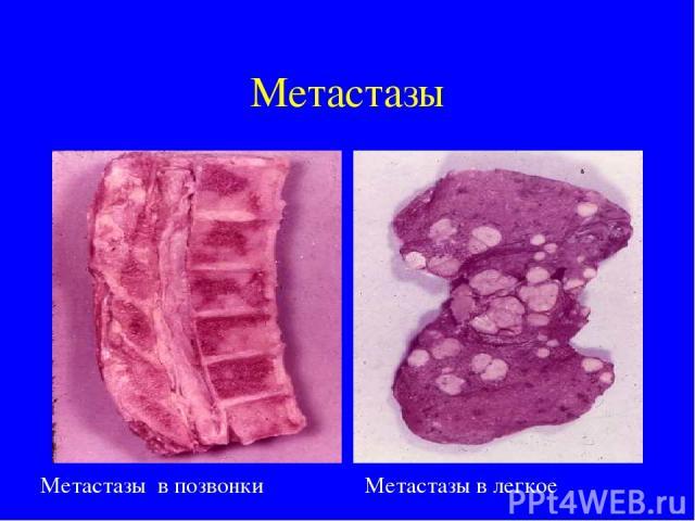 Аденокарцинома легких с метастазами в позвоночнике