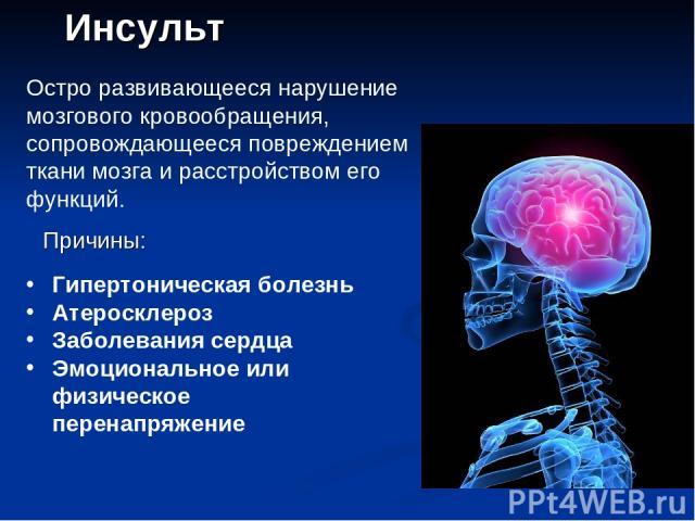 Инсульт Остро развивающееся нарушение мозгового кровообращения, сопровождающееся повреждением ткани мозга и расстройством его функций. Причины: Гипертоническая болезнь Атеросклероз Заболевания сердца Эмоциональное или физическое перенапряжение