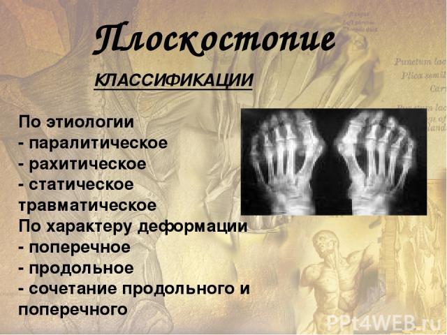 Причины плоскостопия избыточный вес неудобная обувь нерациональные нагрузки травма стопы и голеностопного сустава некоторые врожденные состояния (косолапость) Тяжелые инфекции (полиомиелит) и их осложнения перенесенный в детстве рахит