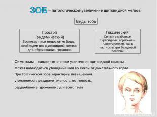 – патологическое увеличение щитовидной железы Простой (эндемический) Возникает п