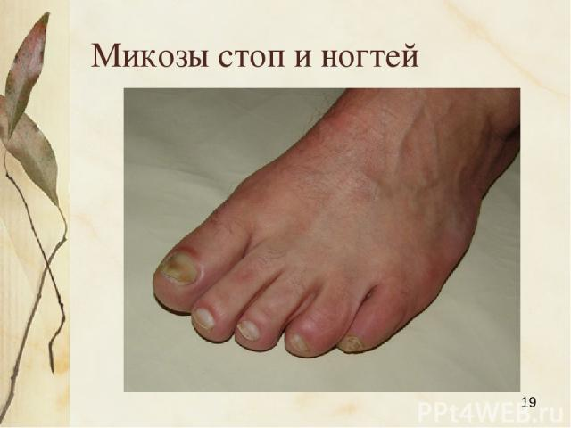 Микозы стоп и ногтей Яковлева Л.А.
