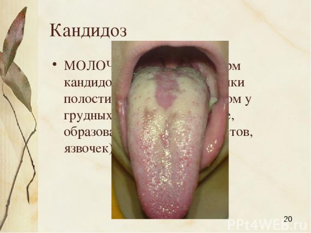 Кандидоз МОЛОЧНИЦА, одна из форм кандидоза слизистой оболочки полости рта, главным образом у грудных детей (покраснение, образование беловатых налетов, язвочек). Яковлева Л.А.