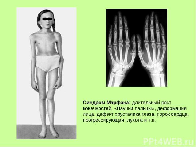 Синдром Марфана: длительный рост конечностей, «Паучьи пальцы», деформация лица, дефект хрусталика глаза, порок сердца, прогрессирующая глухота и т.п.