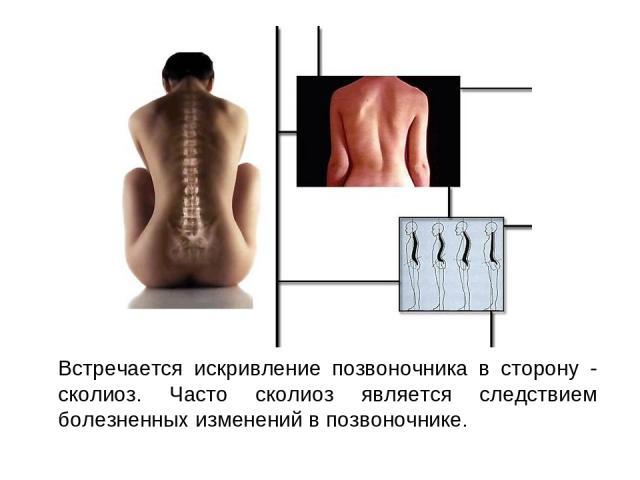Встречается искривление позвоночника в сторону - сколиоз. Часто сколиоз является следствием болезненных изменений в позвоночнике.