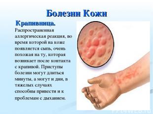 Болезни Кожи Крапивница. Распространенная аллергическая реакция, во время которо