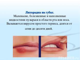 Лихорадка на губах. Маленькие, болезненные и наполненные жидкостями пузырьки в