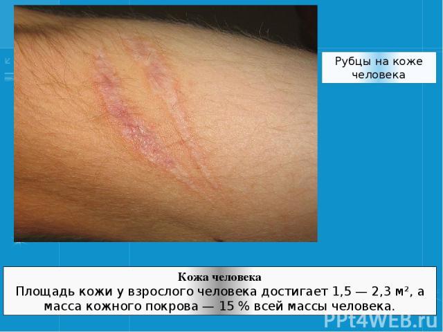 Рубцы на коже человека Кожа человека Площадь кожи у взрослого человека достигает 1,5— 2,3 м², а масса кожного покрова— 15% всей массы человека.