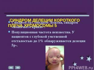 СИНДРОМ ДЕЛЕЦИИ КОРОТКОГО ПЛЕЧА ХРОМОСОМЫ 5 Синдром 5р-, синдром Лежена, синдром