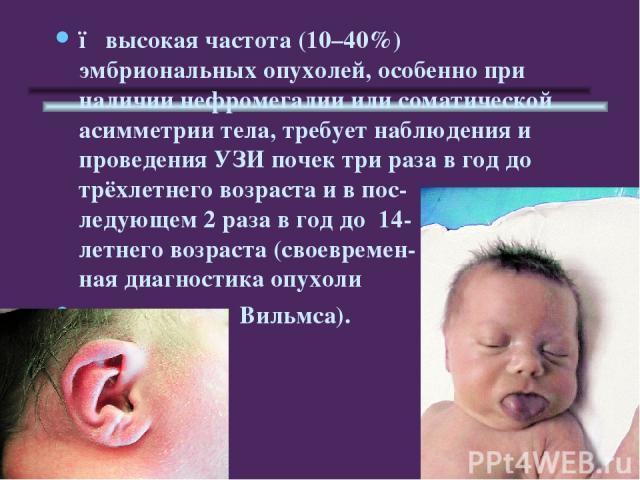 ●высокая частота (10–40%) эмбриональных опухолей, особенно при наличии нефромегалии или соматической асимметрии тела, требует наблюдения и проведения УЗИ почек три раза в год до трёхлетнего возраста и в пос- ледующем 2 раза в год до 14- летнего воз…
