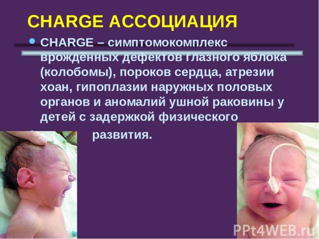 CHARGE АССОЦИАЦИЯ СHARGE – симптомокомплекс врождённых дефектов глазного яблока (колобомы), пороков сердца, атрезии хоан, гипоплазии наружных половых органов и аномалий ушной раковины у детей с задержкой физического развития.