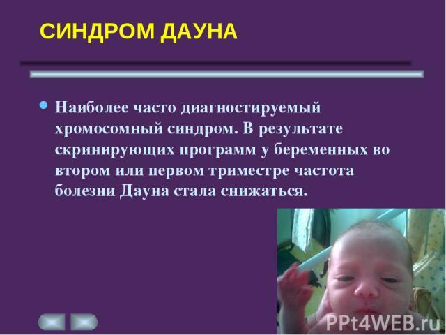 СИНДРОМ ДАУНА Наиболее часто диагностируемый хромосомный синдром. В результате скринирующих программ у беременных во втором или первом триместре частота болезни Дауна стала снижаться.