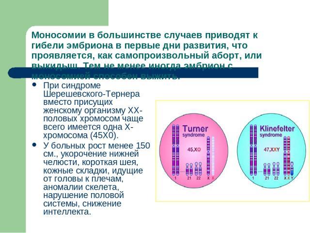 Моносомии в большинстве случаев приводят к гибели эмбриона в первые дни развития, что проявляется, как самопроизвольный аборт, или выкидыш. Тем не менее иногда эмбрион с моносомией способен выжить. При синдроме Шерешевского-Тернера вместо присущих ж…