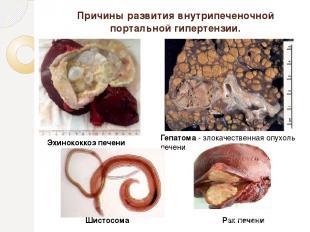 Причины развития внутрипеченочной портальной гипертензии. Эхинококкоз печени Геп