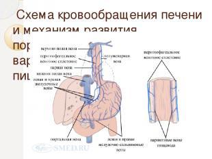 Схема кровообращения печени и механизм развития портальной гипертензии и варикоз